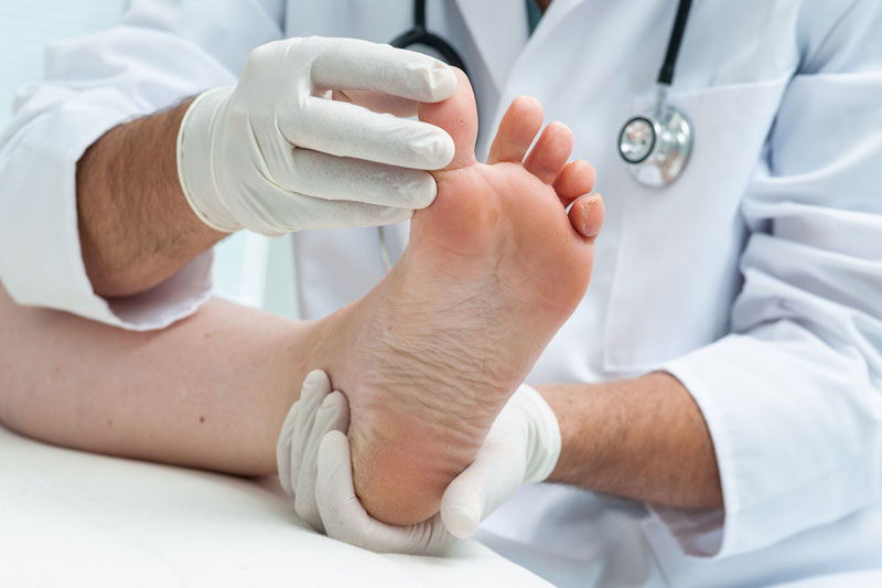 Medical Foot Care Montreal